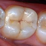 Weiße zahnfüllungen