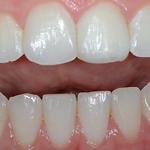 Ästhetische Korrekturen der vorderen Zähne mit Kunststoff