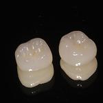 Keramik- und Goldfüllungen– Inlay und Onlay