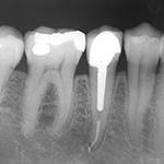 Wurzelkanalbehandlung– mikroskopische Endodontie