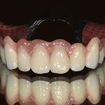 Teleskopzahnersatz auf eigenen Zähnen